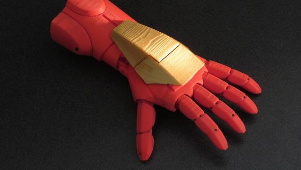 A 3D-printed prosthetic built to mimic the look of Tony Stark's Iron Man armour.