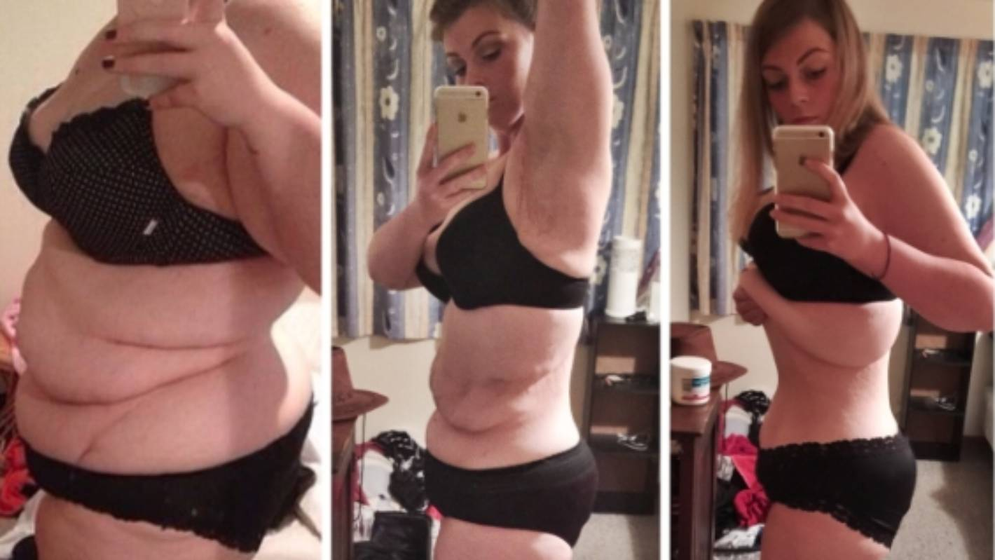 Elora Harre unveils post-surgery stomach after excess skin ...