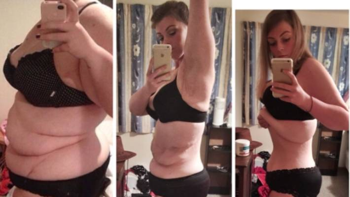 Christchurch Woman S Battle With Excess Skin After Weight Loss