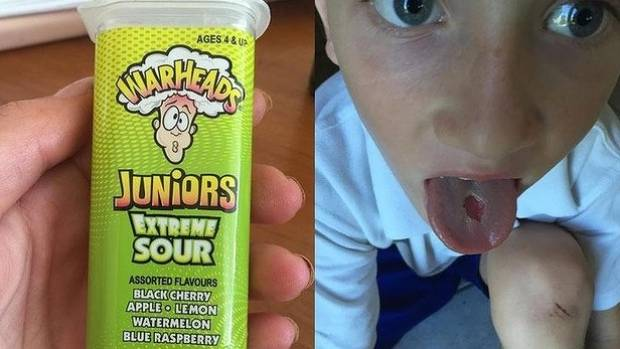EXTREME CONSEQUENCES: An 'extreme sour' lolly left an extremely surprising hole in Lachlan Canak's tongue.
