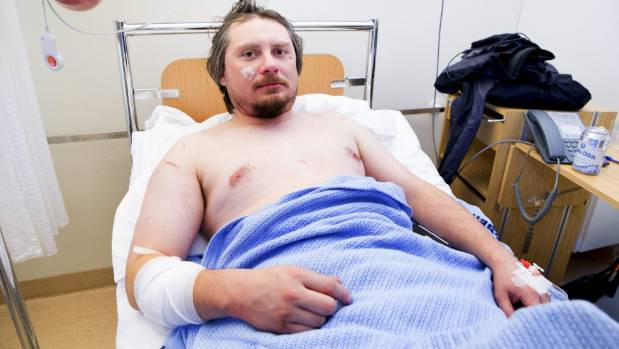 RECOVERING Jakub Moravec from Prague in the Czech Republic lies in his hospital bed at  sc 1 st  Stuff.co.nz & Polar bear attacks tent in Norwayu0027s Arctic injures tourist ...