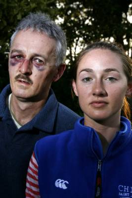 Mountain bikers Nick Rea and daughter Kate escaped with bruises and shrapnel wounds after encountering Burton on a fire ...