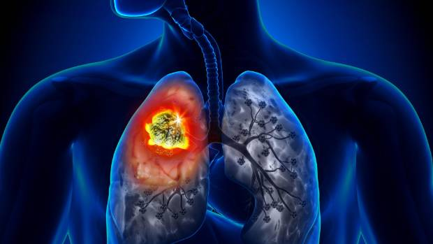 the characteristics of lung cancer and the importance of early diagnosis