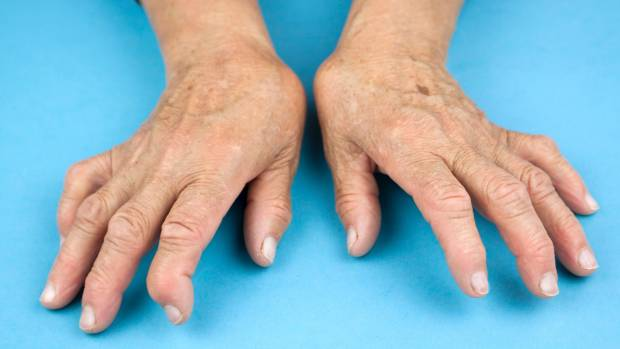 The hands are one of the most common places affected by rheumatoid arthritis.