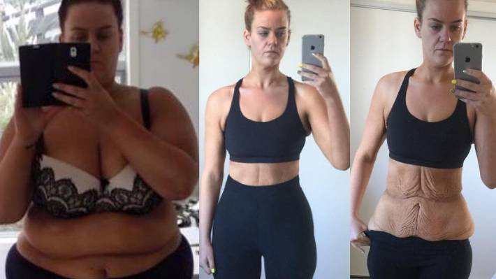 kiwi shuts down online haters with loose skin weight loss pic