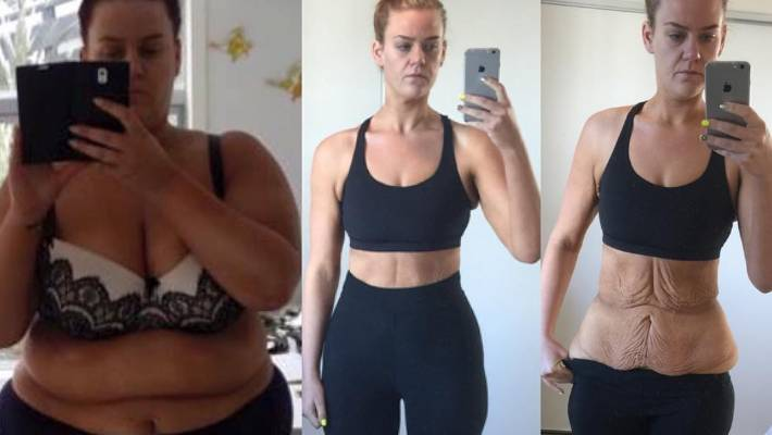 What Next For Kiwi Weight Loss Star Simone Anderson After Butt Lift