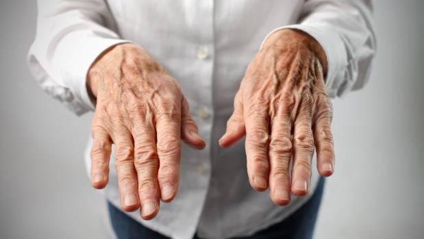 Essential Tremor often occurs in the hands.