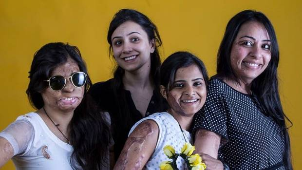 Acid attack victims in India.