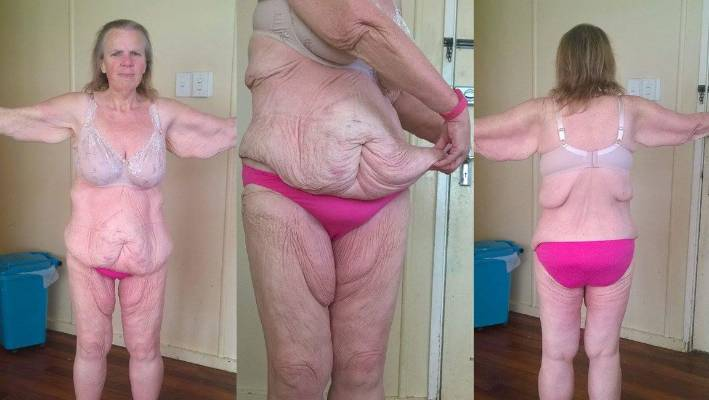 Auckland Woman Grace Payne S Amazing 112kg Weight Loss Journey