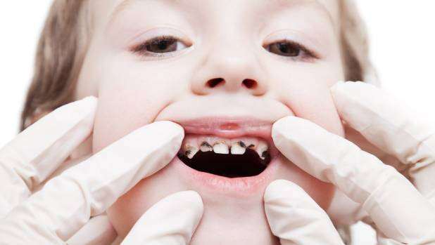 """Dentists warn tooth decay could be just """"the canary in the cage"""" indicating other internal health concerns."""
