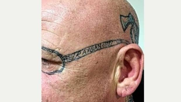 Sunglasses Tattoo  man needs laser surgery to remove sunglasses tattooed on his face