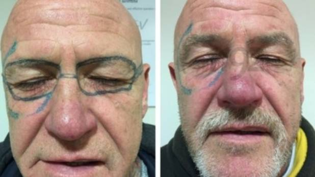 Man needs laser surgery to remove sunglasses tattooed on for Tattoo after surgery