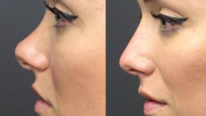 Non-surgical nose jobs are real, but expensive | Stuff co nz