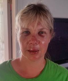 Kellie Minnell suffered a broken nose when her face clipped the edge of the tyre boundary wall.