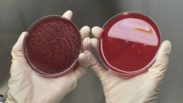Petrie dishes with superbugs on the left and a clean plate to the right - after a drug developed in Perth has killed them.