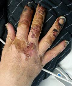 Bruce Morrison faces the loss of his fingers after contracting legionella disease from potting mix.