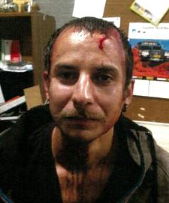 French tourist David Le Prunennec after his scuffle with TECT park ranger Jarron McInnes.