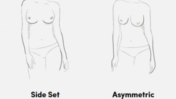The illustrations depict seven common breast shapes.