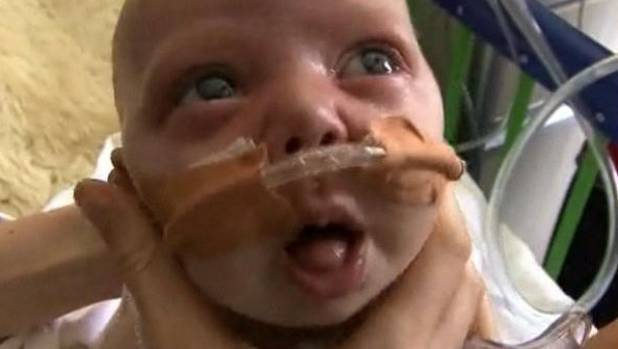 A seven-week-old baby with whooping cough in 2013.