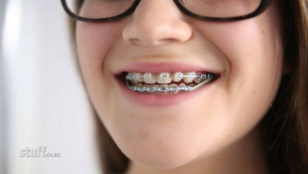 Brace yourself those teeth will cost a lot to fix stuff solutioingenieria Images