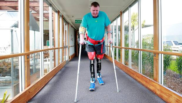 Ian walks for the first time on prosthetic limbs in 2014.