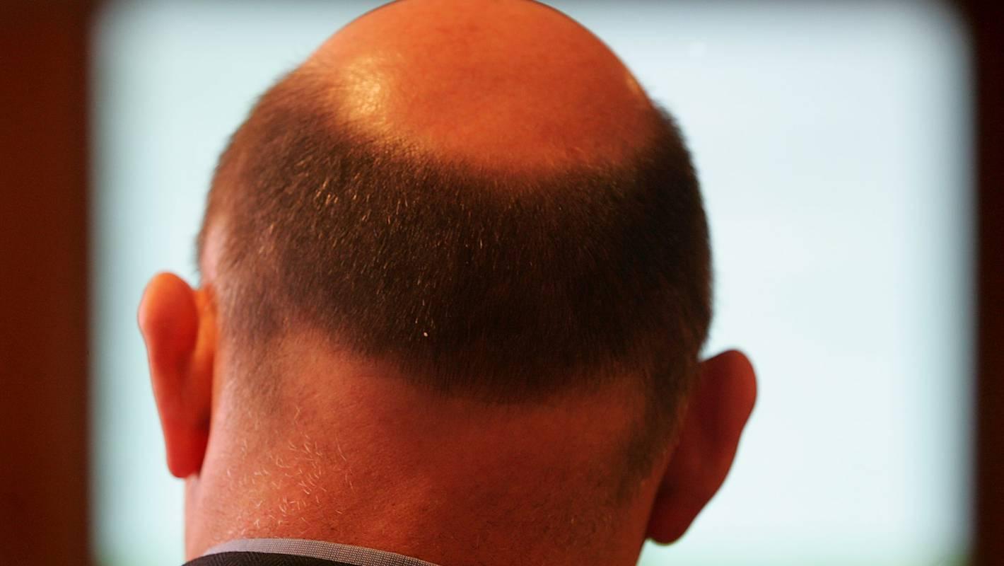 How I Learned To Love My Bald Spot Stuff Co Nz