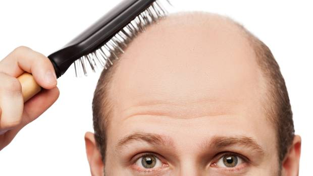University of British Columbia research has shown that changing your shampoo can be beneficial in slowing hair-loss.