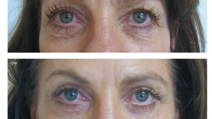 What it feels like to get an eye-lift | Stuff co nz