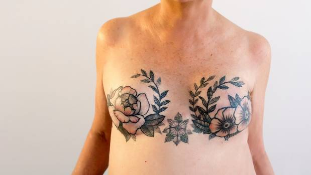 Tattoos help breast cancer survivor 39 reclaim her body for Breast cancer tattoo