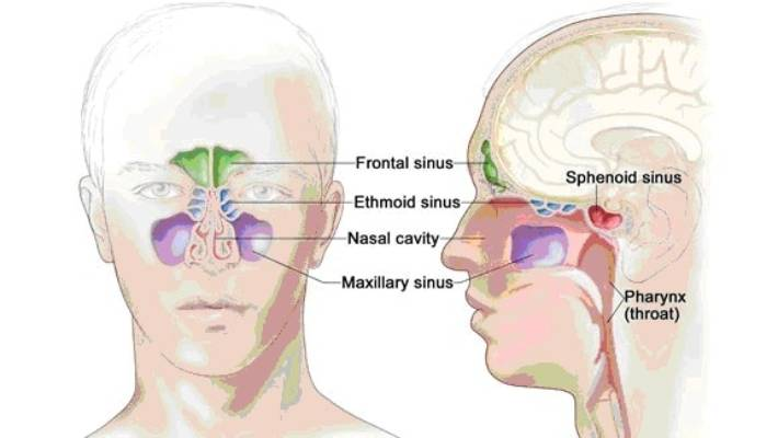 the pain of a sinus infection and what you can do about it stuff co nz Sinus Anatomy Diagram the sinuses are small air filled pockets that sit within our facial bones