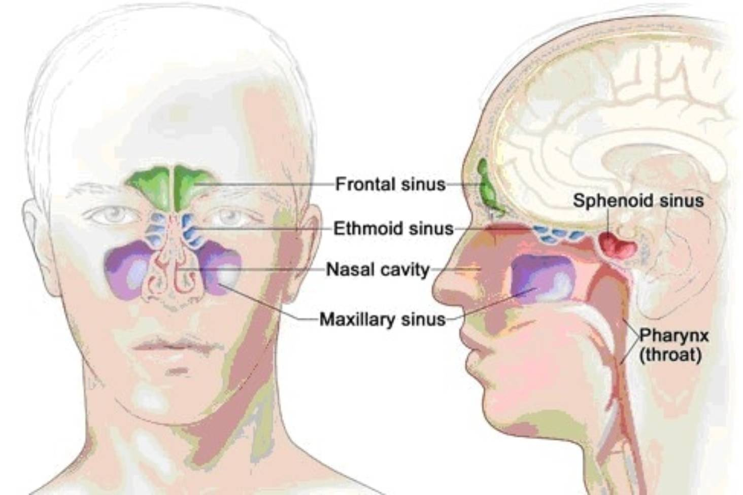 The pain of a sinus infection and what you can do about it | Stuff co nz
