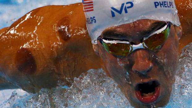 Image result for cupping therapy michael phelps
