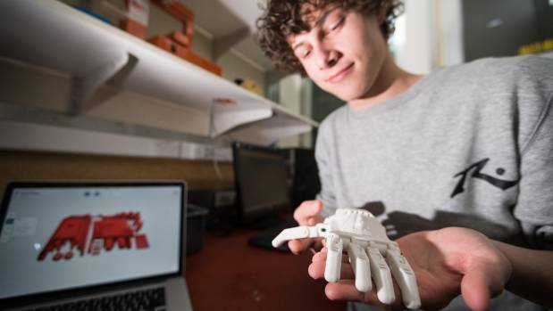 Max Campbell is designing a prosthetic hand for his younger brother, who has cerebral palsy.