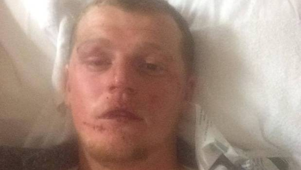 Injuries suffered by Wellington man Greg Morgan after being assaulted by Wellington Lions rugby player Losi Filipo.