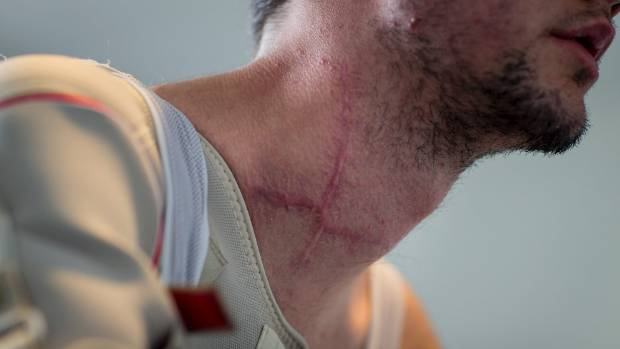The scars are permanent reminders of how close Keagan Girdlestone came to losing his life after crashing through the ...