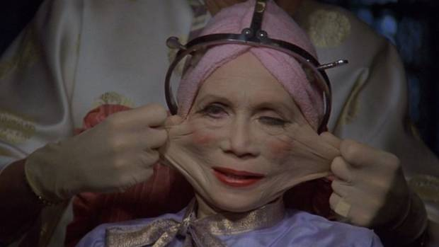 Or is this the future? Katherine Helmond experiences radical plastic surgery in the 1985 film Brazil.