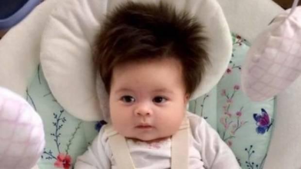 """As a bald man, I'm very proud of my 2-month-old's hair,"" Alexandra's dad wrote."
