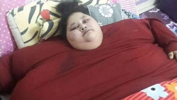 Doctor offers pro bono lifesaving surgery to help 'world's heaviest woman'