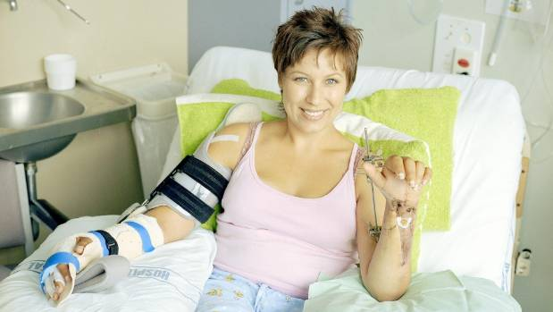Simonne Butler whose hands were severed in a sword attack.