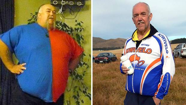 On the left is Dean Rattray in early 2013 and on the right in 2014, 16 months after his surgery.