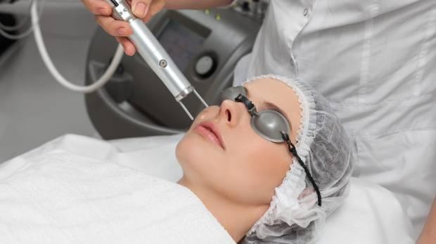 excel v laser treatment reviews