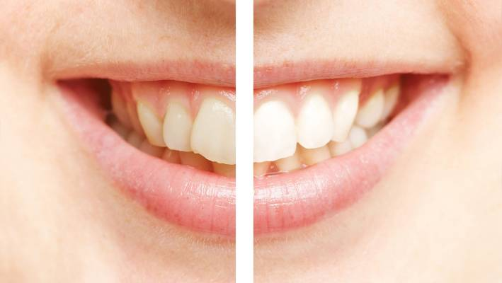 This week we tried: Teeth whitening at Lumino Ponsonby