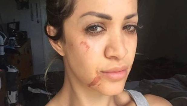 Woman feels butchered after horrifying wax treatment at auckland golnaz bassam tasbar suffered scarring to her face after having a facial wax procedure done at solutioingenieria Choice Image