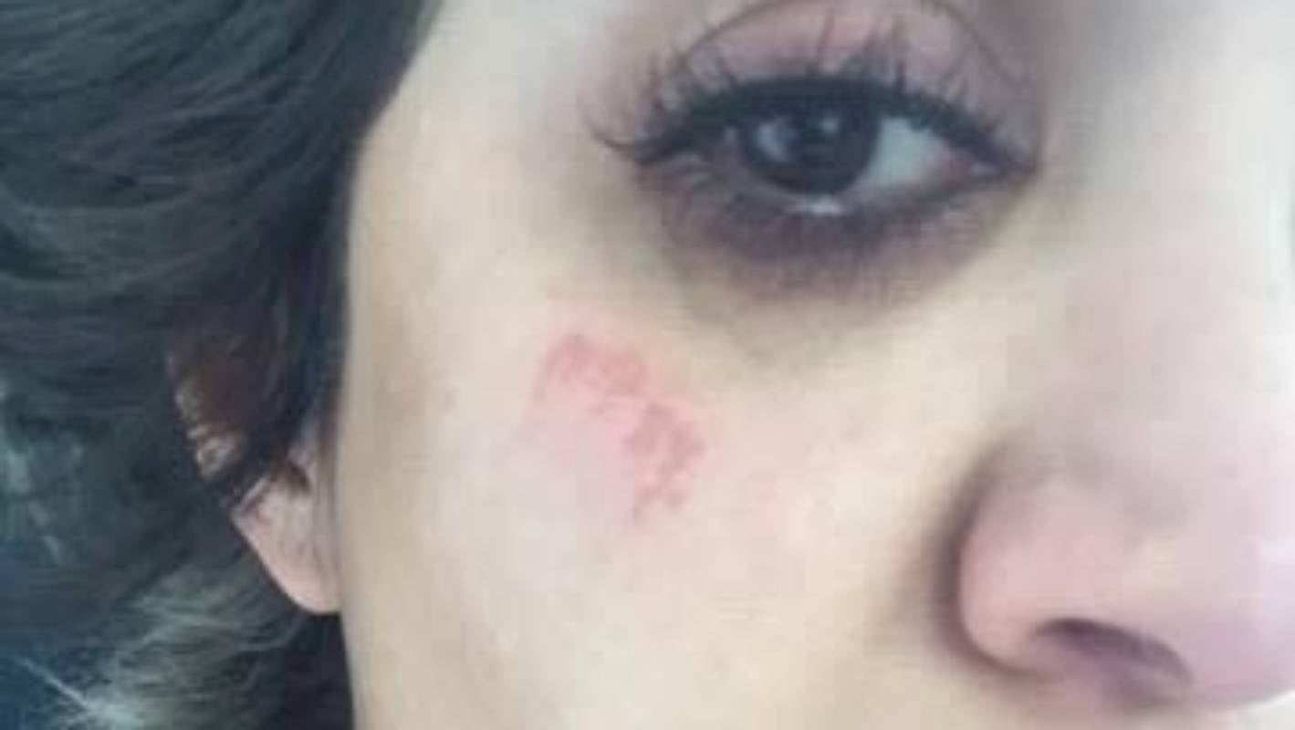 Woman Feels Butchered After Horrifying Wax Treatment At Auckland