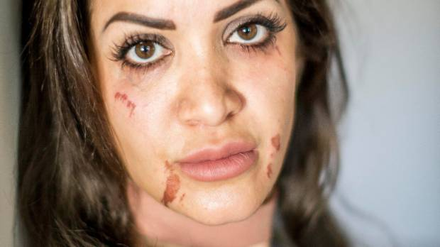 Woman feels butchered after horrifying wax treatment at auckland bassam tabar said she felt like her face was put in acid after the botched treatment solutioingenieria Choice Image