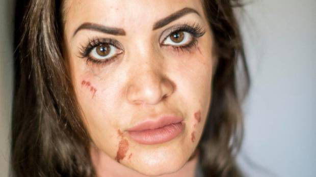 Golnaz Bassam Tasbar suffered scarring to her face after having a facial wax procedure at iCandy Nail and Waxing salon ...