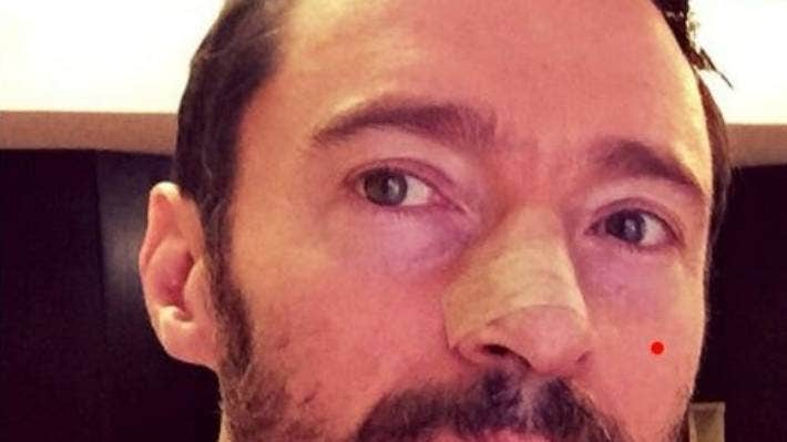 Hugh Jackman Has Sixth Skin Cancer Removed Stuff Co Nz