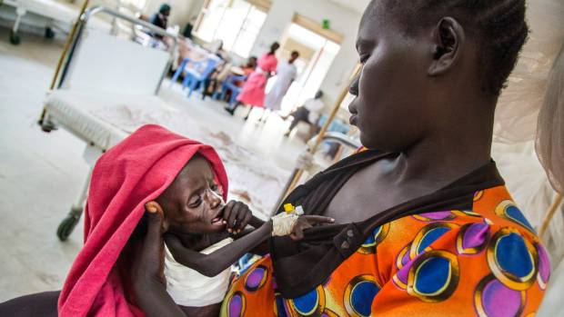Hellen Maneno holds her baby Emmanuel Laki, a child with severe malnutrition.