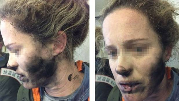 The woman was badly burnt when her headphones exploded on a flight from Beijing to Melbourne.