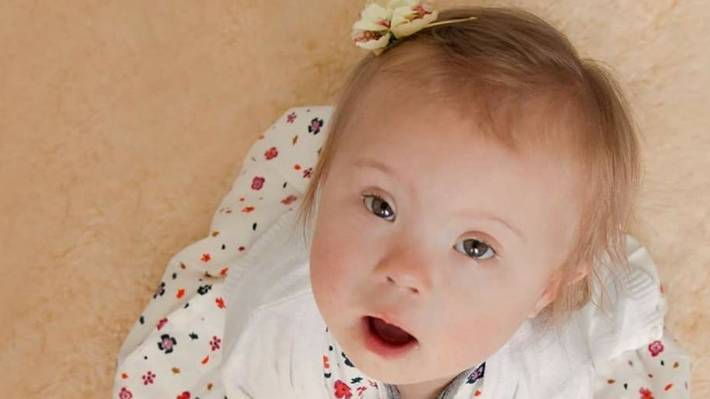 Mothers of children with Down Syndrome encouraged to